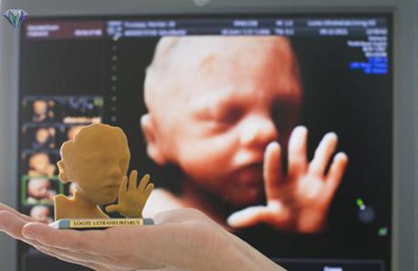 Di-Jepun-Boleh-Cetak-Gambar-Bayi-Yang-Belum-Lahir-Secara-3D